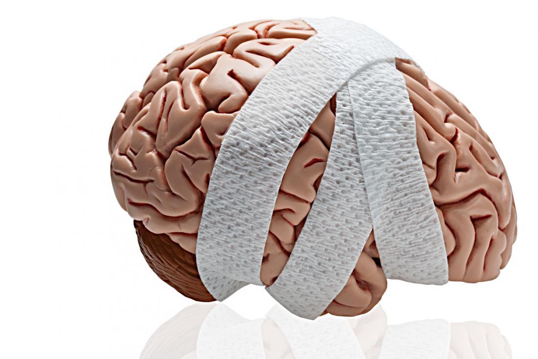 Hoofd- hersenletsel in afgelegen gebied (deel II)